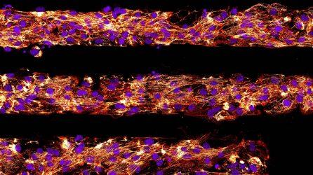 WID Stem Cell Advance Yields Mature Heart Muscle Cells