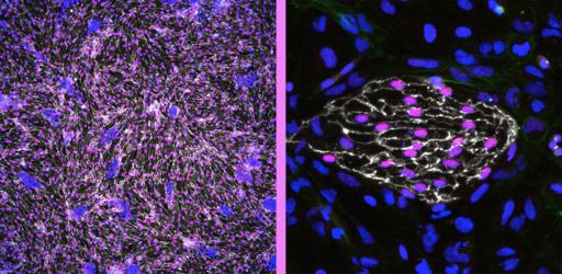 Can Artery 'Banks' Transform Vascular Medicine?
