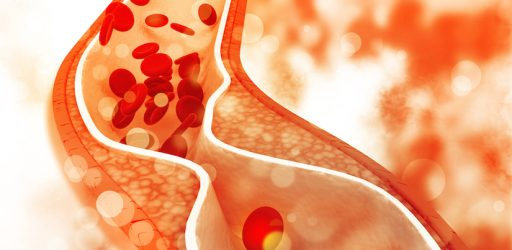 A Stent-Free Future for Common Cardiovascular Ailments