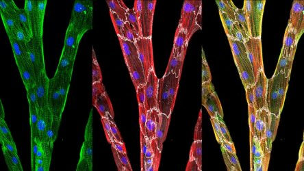 New Tool for Assessing Heart Muscle Cells Helps Unlock Their Potential